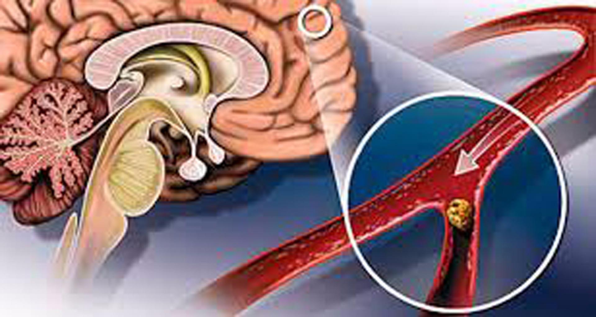 Нарушение мозгового кровообращения: симптомы и лечение